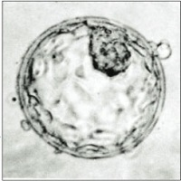 <span>blastocysta; Mr. J. Conaghan; domena publiczna; wikipedia</span>