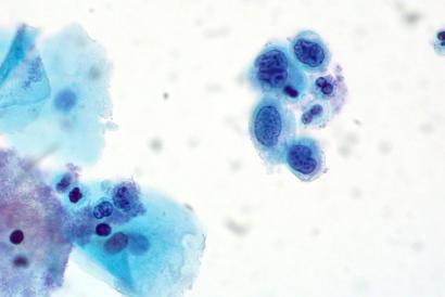 Po lewej duże komórki zdrowego nabłonka płaskiego, po prawej grupka nabłonków zmienionych nowotworowo, o wielkich, nieregularnych jądrach komórkowych i małeś ilości cytoplazmy; to zmiany dość zaawansowane już, ale najprawdopodobniej ograniczone jeszcze do nabłonka – potwierdzą to pobrane z szyjki wycinki; Ed Uthman, CC BY 2.0, https://www.flickr.com/photos/euthman/6032536156/