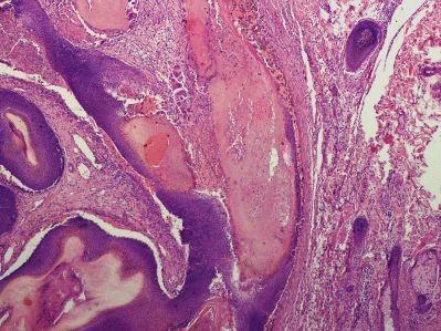 <span>A pod mikroskopem guzek skórny; LWozniak&KWZielinski, CC BY-SA 3.0,</span>https://commons.wikimedia.org/w/index.php?curid=11990467
