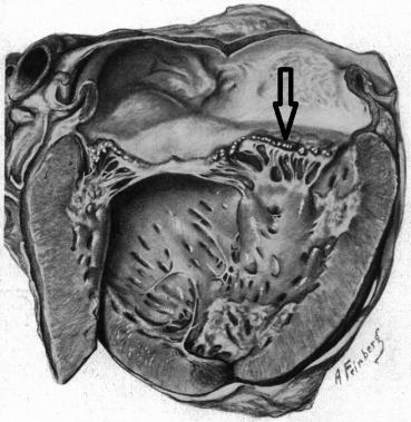 <span>Toczniowe zapalenie wsierdzia w oryginalnej publikacji Libmana i Sacksa z 1924 roku; strzałka wskazuje na ciąg drobnych sterylnych wegetacji;</span>https://jamanetwork.com/journals/jamainternalmedicine/article-abstract/534502