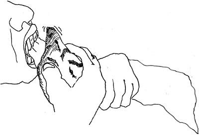 <span>Ilustracja 1. Pokazanie, jak znaki były prawdopodobnie robione na siekaczach i kłach. Osobnik praworęczny trzyma narzędzie kamienne, przecinając przedmiot trzymany w przednich zębach. Czasami, kiedy narzędzie przypadkiem uderza w powierzchnię zęba, pozostawia trwałe wyżłobienie na wargowej powierzchni zęba. Powtarzające się wyżłobienia na powierzchni zęba pozwalają na ocenę, która ręka była używana do tego zadania.</span>