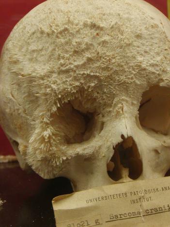 <span>Mięsaki kościopochodne czaszki nie są częste, z tą jednak właśnie patologią najprawdopodobniej mamy tu do czynienia – setki drobnych igiełek kostnych przebijają się przez powierzchnię kości, wgryzając się w przyległe tkanki; uniwersyteckie Muzeum Medyczne w Kopenhadze;</span>https://www.flickr.com/photos/medicalmuseion/6081954359<span>, zajrzyjcie też tutaj –</span>https://www.instagram.com/p/28EFQNpjn2/
