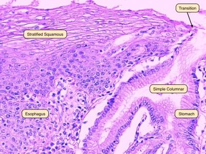 Połączenie żołądkowo-przełykowe; po lewej przełykowy nabłonek wielowarstwowy płaski, po prawej nabłonek gruczołowy żołądka;http://medcell.med.yale.edu/systems_cell_biology/gi_tract_lab.php