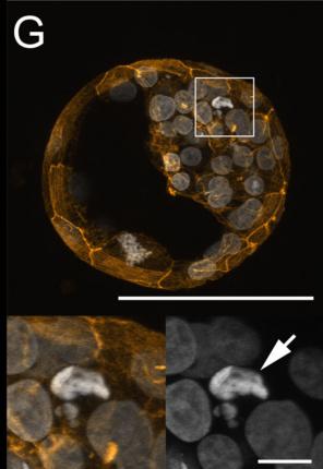 Obumierająca komórka w obrębie węzła zarodkowego; CC BY 4.0, http://journals.plos.org/plosone/article?id=10.1371/journal.pone.0022121