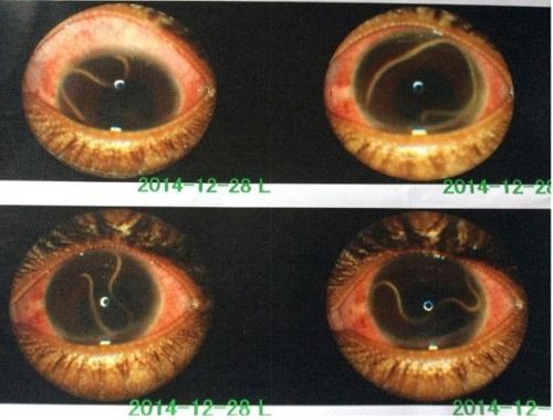 Loa loa w komorze przedniej oka pacjentki; CC-BY,https://www.ncbi.nlm.nih.gov/pmc/articles/PMC4824396/