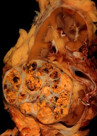 <span>Rak jasnokomórkowy nerki; Ed Uthman, domena publiczna</span>