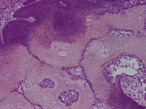 <span>Pilomatrixoma – drobne ciemnoniebieskie komórki orz puste cienie komórkowe; LWozniak&KWZielinski, CC BY-SA 3.0,</span>https://commons.wikimedia.org/w/index.php?curid=11990331