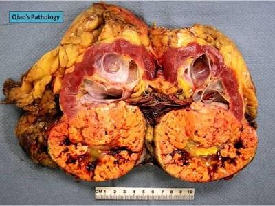<span>Przekrojona nerka z intensywnie żółtym rakiem jasnokomórkowym u dołu; Qiao's Pathology,</span>https://www.flickr.com/photos/jian-hua_qiao_md/8448173383/