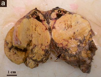 <span>Tarczyca na przekroju przebudowana żółtą guzowatą tkanką;</span>https://www.ncbi.nlm.nih.gov/pubmed/28937391