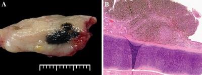 Czerniak błony śluzowej (małżowina nosowa) – czerniak to to czarne, to białe zaś to zdrowe tkanki; ot, kolejna niespodzianka – zdrowe tkanki często są mniej lub bardziej białawe na przekroju;https://www.ncbi.nlm.nih.gov/pmc/articles/PMC5340730/
