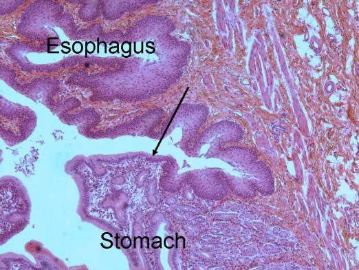 <span>I ponownie połączenie żołądkowo-przełykowe: na górze nabłonek płaski przełyku, na dole nabłonek gruczołowy żołądka, strzałka wskazuje granicę; fot. W. Coons,</span>http://www2.victoriacollege.edu/dept/bio/Belltutorials/Histology%20Tutorial/Digestive%20System/Digestive%20System.html#Esophagus