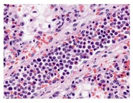 Wypełniona białymi krwinkami biegnąca ukosem tętniczka płucna – wycinek z płuca dziecka zmarłego w przebiegu krztuśca; https://www.ncbi.nlm.nih.gov/pmc/articles/PMC3723573/