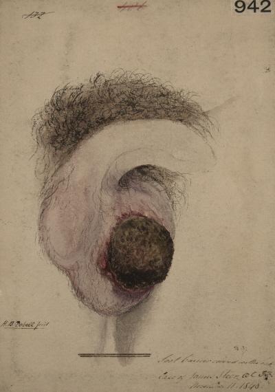 Rak kominiarzy, Horace Benge Dobell, dziewiętnastowieczna akwarela przedstawiająca raka moszny (ta wielka czarna guzowata zmiana), CC BY 4.0, http://wellcomeimages.org/indexplus/image/L0062113.html