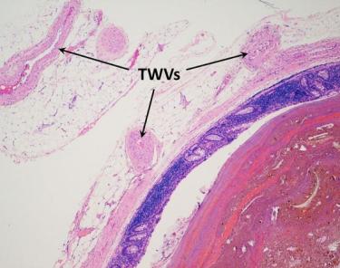 <span>Uchyłek bardziej z bliska – od lewej: tkanka tłuszczowa z zaznaczonymi strzałkami naczyniami krwionośnymi, granatowa błona śluzowa i czaerwonawobrunatna treść kałowa;</span>https://www.ncbi.nlm.nih.gov/pmc/articles/PMC4195049/