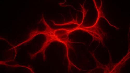 Wybarwione na czerwono astrocyty w hodowli tkankowej; GrzegorzWicher; Wikipedia; GNU Free Documentation License