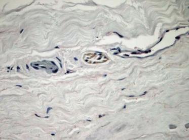 Opona twarda wokół nerwu wzrokowego; po lewej drobne naczynie tętnicze, po prawej – żylne, pośrodku wybarwione podoplaniną (D2-40) naczynie limfatyczne; https://www.ncbi.nlm.nih.gov/pubmed/15625904