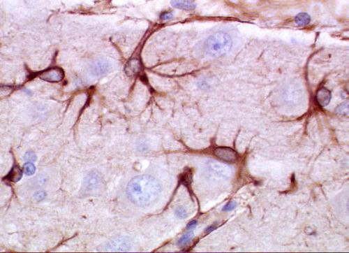 Mysie astrocyty wybarwione na brązowo; Dantecat; Wikipedia; public domain