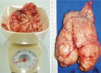 <span>Ten akurat gruczoł krokowy waży 720 g, co czyni go jednym z potężniejszych w literaturze medycznej; CC BY,</span>https://www.ncbi.nlm.nih.gov/pmc/articles/PMC4943789/