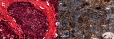Niezróżnicowany rak grasicy, praktycznie nie do rozpoznania bez zastosowania odpowiednich przeciwciał; https://www.ncbi.nlm.nih.gov/pmc/articles/PMC4682268/
