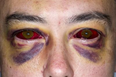 Wylewy krwawe w przebiegu krztuśca; https://www.ncbi.nlm.nih.gov/pmc/articles/PMC4069672/