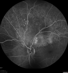 Obraz angiograficzny (angiografia fluoresceinowa) naczyniówki usianej iskierkami i przejaśnieniami przerzutów raka sutka powodujących częściowe odwarstwienie siatkówki; https://www.hindawi.com/journals/bmri/2015/574086/