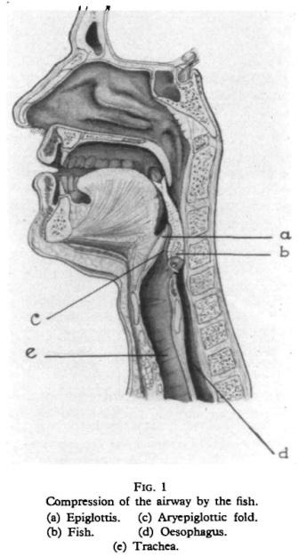 Rybka, która zaklinowała się na poziomie krtani, rys anatomiczny (kolejno – nagłośnia, ryba, fałd nalewkowo-nagłośniowy, przełyk, tchawica); https://www.ncbi.nlm.nih.gov/pubmed/5949967