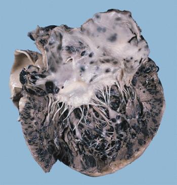 Serce na przekroju – czarne obszary to przerzuty czerniaka; PEIR Digital Library (Pathology image database), AFIP; domena publiczna