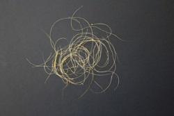 Włosy odkrztuszane przez sześćdziesięciolatkę opisaną w Journal of Thoracic Oncology;https://www.jto.org/article/S1556-0864(15)33429-8/fulltext