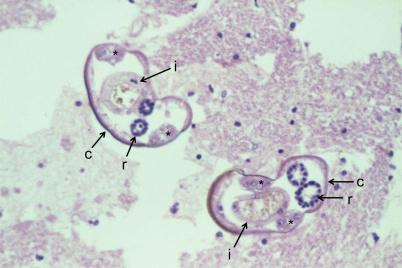 Przekrój larw A. cantonensis w rdzeniu kręgowym (c- oskórek, i – jelito, r – sznury płciowe);https://www.ncbi.nlm.nih.gov/pmc/articles/PMC4312175/
