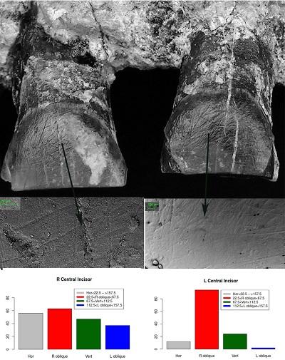 <span>OH‐65 pokazuje koncentrację wyżłobień na wargowych stronach przednich zębów. Widać je gołym okiem. W badaniu mikroskopowym dopasowują się do wyżłobień znajdowanych u znacznie późniejszych hominidów. Wyżłobienia głównie ograniczają się do lewego i prawego I1, prawego I2 i prawego C1. Dominują prawoskośne zadrapania, prowadząc do identyfikacji OH‐65 jako osobnika praworęcznego. (n=liczba wyżłobień dla kategorii)</span>
