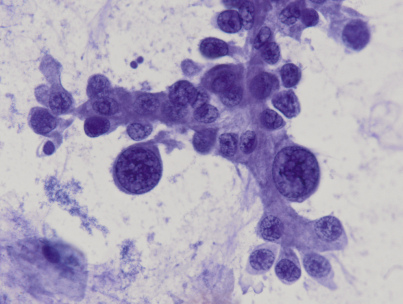 <span>Brodawkowata odmiana raka gruczołowego płuc; F D'Aleo, M Maisano i G Albonico; </span>https://www.flickr.com/photos/pulmonary_pathology/6327961776/<span>, CC BY-SA 2.0</span>