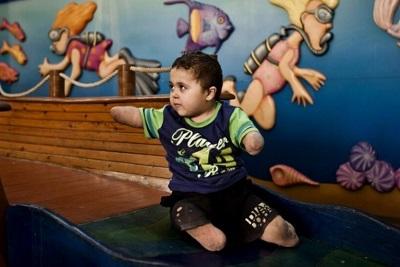 ZdjęcieAssociated Press– dziecko z Gazy, po spowodowanej chorobą genetyczną amputacji kończyn, leczone w izraelskim szpitalu Tel Hashomer.