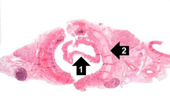 Przekrój przez tchawicę czterolatki zmarłej w przebiegu błonicy; pierwsza ze strzałek pokazuje złuszczającą się martwiczo-włóknikową błonę, druga – chrząstkę tchawiczą; Pathology Education Instructional Resource (PEIR), University of Alabama at Birmingham Department of Pathology;http://peir.path.uab.edu/wiki/IPLab:Lab_9:Diphtheria
