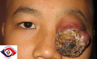 Mięsakomięsak prążkowanokomórkowy powieki u dwunastoletniego chłopca; http://www.sarawakeyecare.com/caseoftheweek/case8a.htm
