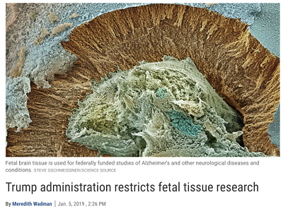 https://www.nytimes.com/2019/06/05/us/politics/fetal-tissue-research.html?ref=oembed