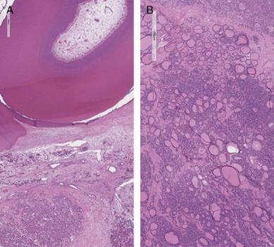 W jednym jajniku koegzystuje sobie tworzący się ząb (jednolicie różowa plama u góry po lewej) i pęcherzyki tarczycowe(całe prawe zdjęcie); https://www.ncbi.nlm.nih.gov/pubmed/28394842