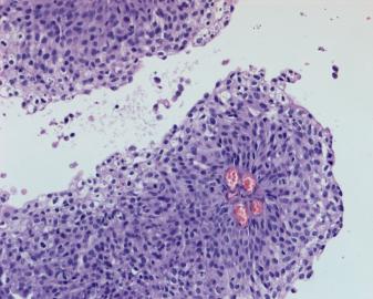 <span>Jedna z brodawek kształtujących powierzchnię raka pęcherza (w średku dorobne naczynia krwionośnie); CC BY-NC 4.0,</span>https://www.ncbi.nlm.nih.gov/pmc/articles/PMC6218121/
