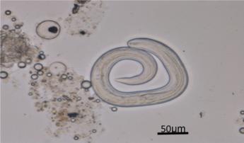 <span>Larwy Angiostrongylus cantonensis odzyskane z pareczników nabytych na lokalnym targu;</span>https://www.ajtmh.org/content/journals/10.4269/ajtmh.18-0151