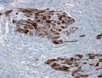 Mięsak nabłonkopodobny przypomina raki także immunohistochemicznie – na brązowo wyznakowano cytokeratyny typowe dla tkanek nabłonkowych; https://www.humpath.com/spip.php?article3077