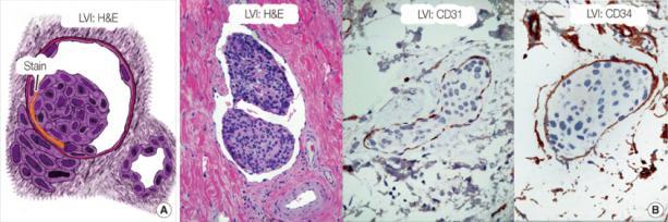 Komórki raka piersi w świetle naczyń limfatycznych (LVI, lymphovascular invasion) – tak rozpoczyna się ich wędrówka po ciele; zdjęcia po prawej podbarwione przy pomocy przeciwciał przeciwko białkom śródbłonka naczyń; NG Zaorsky, https://www.ncbi.nlm.nih.gov/pmc/articles/PMC3542859/, CC BY-NC 3.0