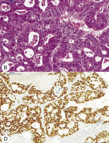 <span>Przerzut raka jelita grubego w żuchwie, na dole odczyn immunohistochemiczny przeciwko CDX2;</span>https://scielo.conicyt.cl/pdf/ijodontos/v9n2/art19.pdf