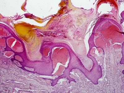 Rogowiec Mibellego – rozdęte niczym bąble wypełnione krwią cienkościenne naczynia, a w centrum nawarstwienie mas rogowych; LWozniak&KWZielinski, CC BY-SA 3.0,https://en.wikipedia.org/wiki/Angiokeratoma