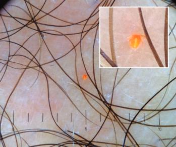 Złocistopomarańczowa larwa na nodze pacjenta;https://s3-eu-west-1.amazonaws.com/thejournalhub/10.15570/actaapa.2017.14/actaapa.2017.14.pdf